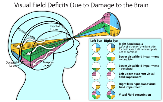 Visual field deficits due to damage to the brain